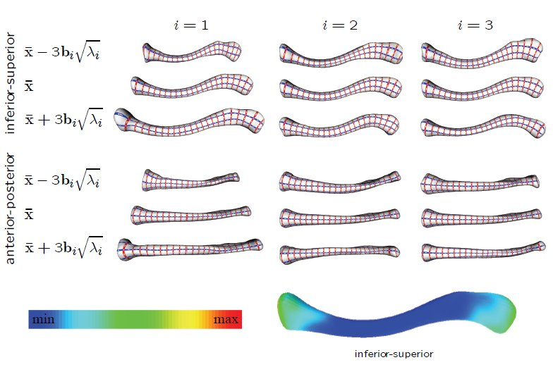 Clavicle Shape Modeling And Analysis For The Design Of A Fracture