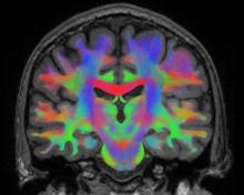 Coronal slab visualization of a whole brain tractogram.